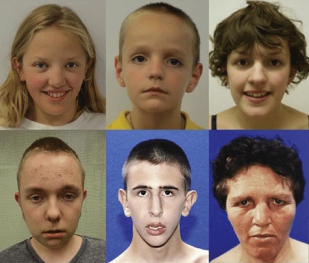 Как генные мутации ведут к аутизму