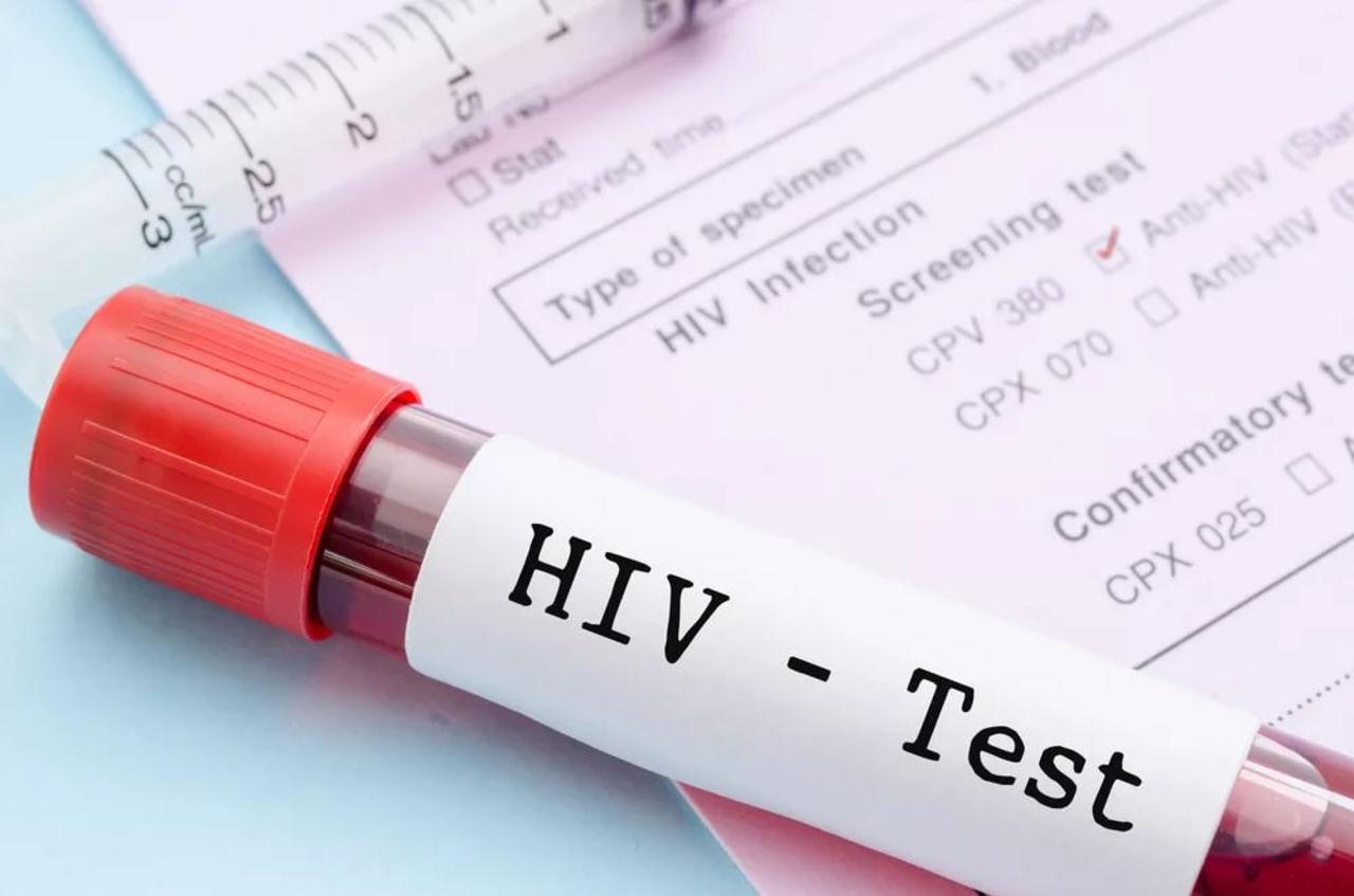 С помощью генной инженерии ученые ликвидировали вирус ВИЧ у животных