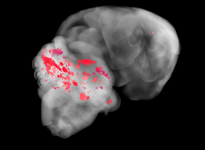 Микробиота кишечника оказалась способна провоцировать инсульт