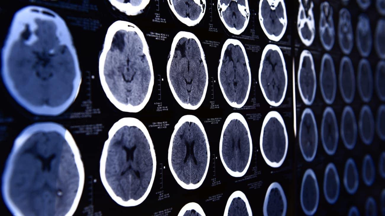 Ученые приблизились к обнаружению причины возникновения рассеянного склероза