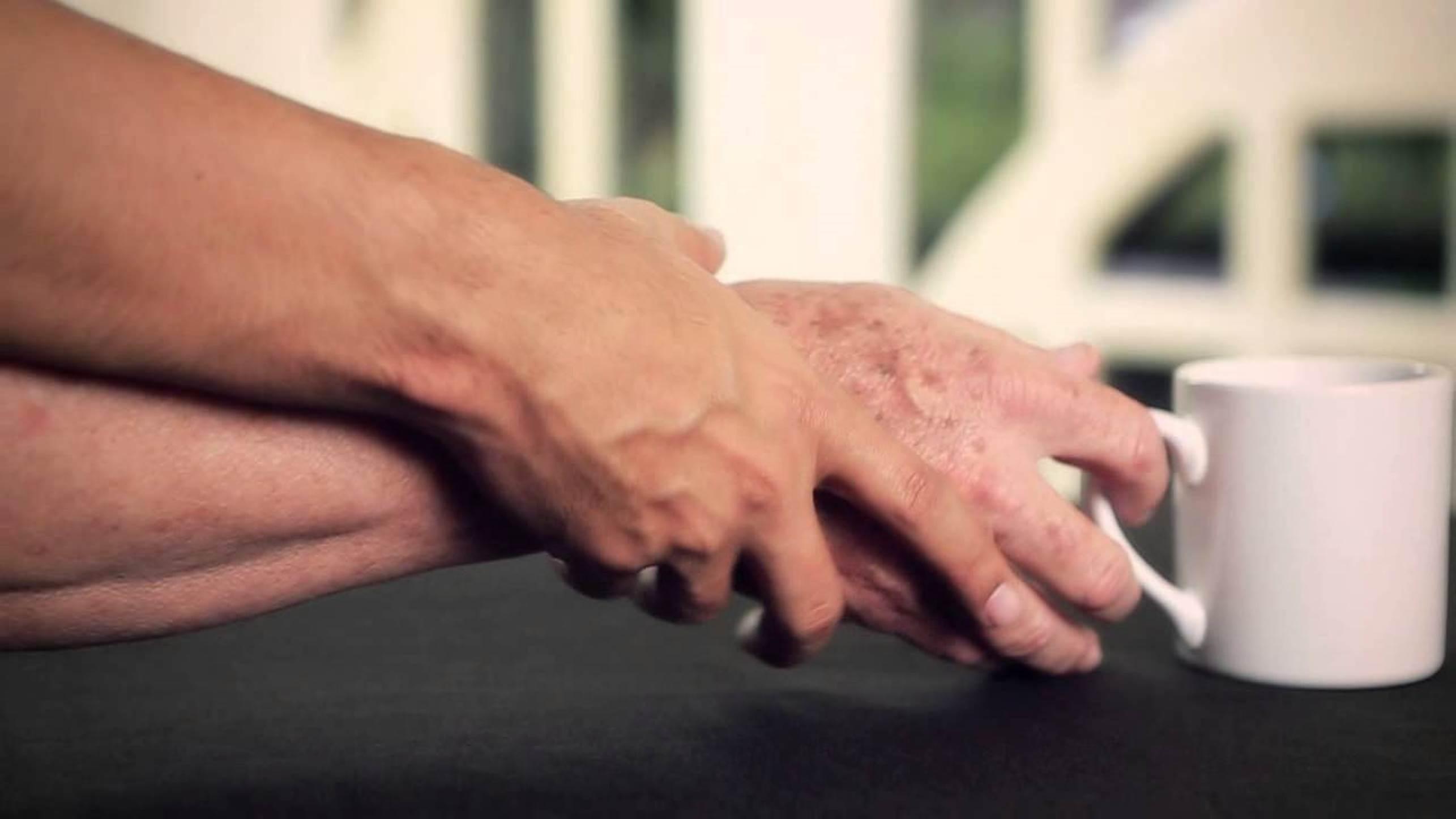 Инъекция особого вируса прямо в мозг облегчила симптомы болезни Паркинсона