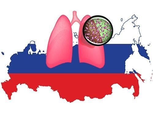 исследователи предсказали России много устойчивого туберкулеза