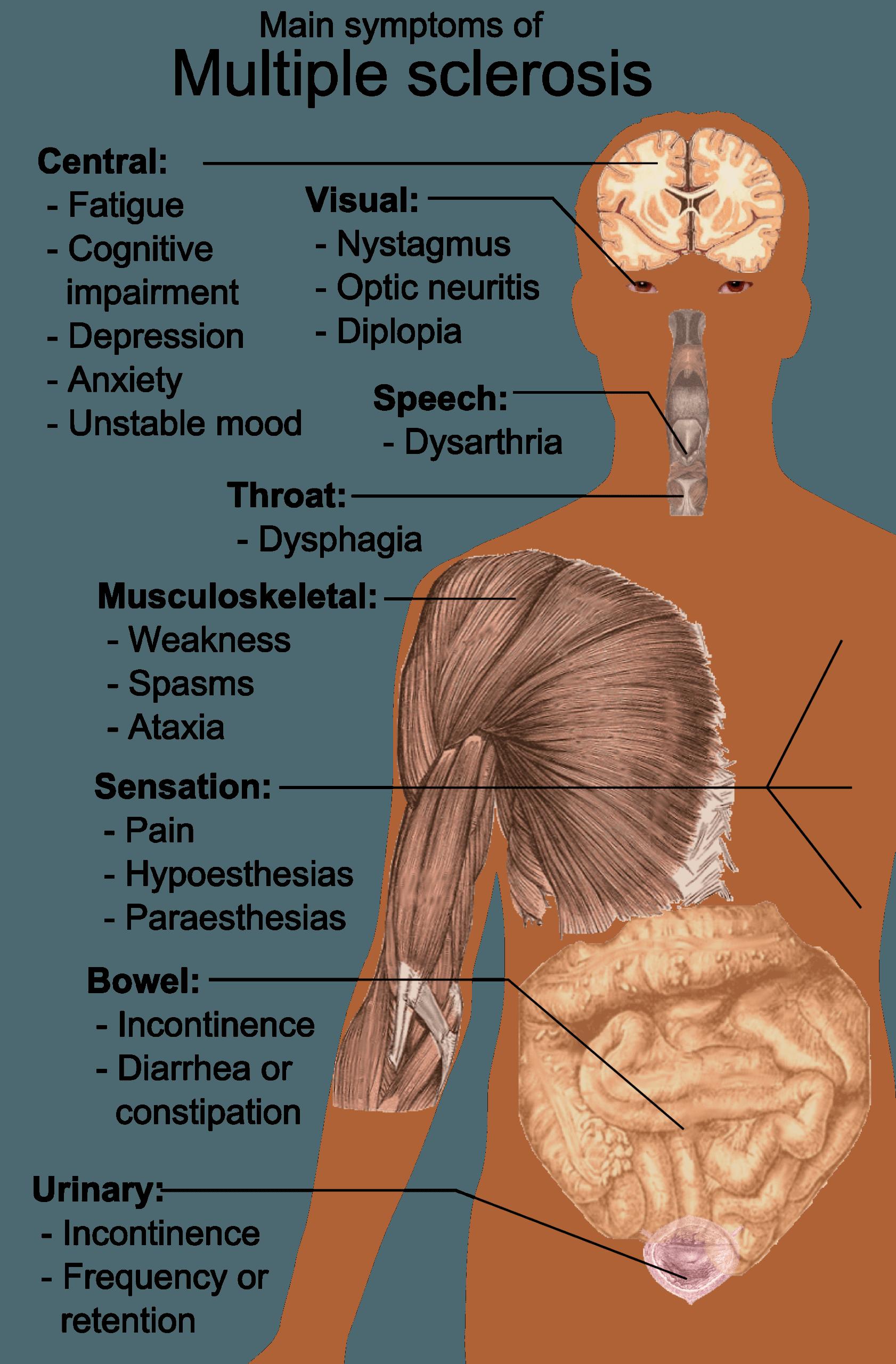 Рассеянный склероз: кто убийца нервных волокон?