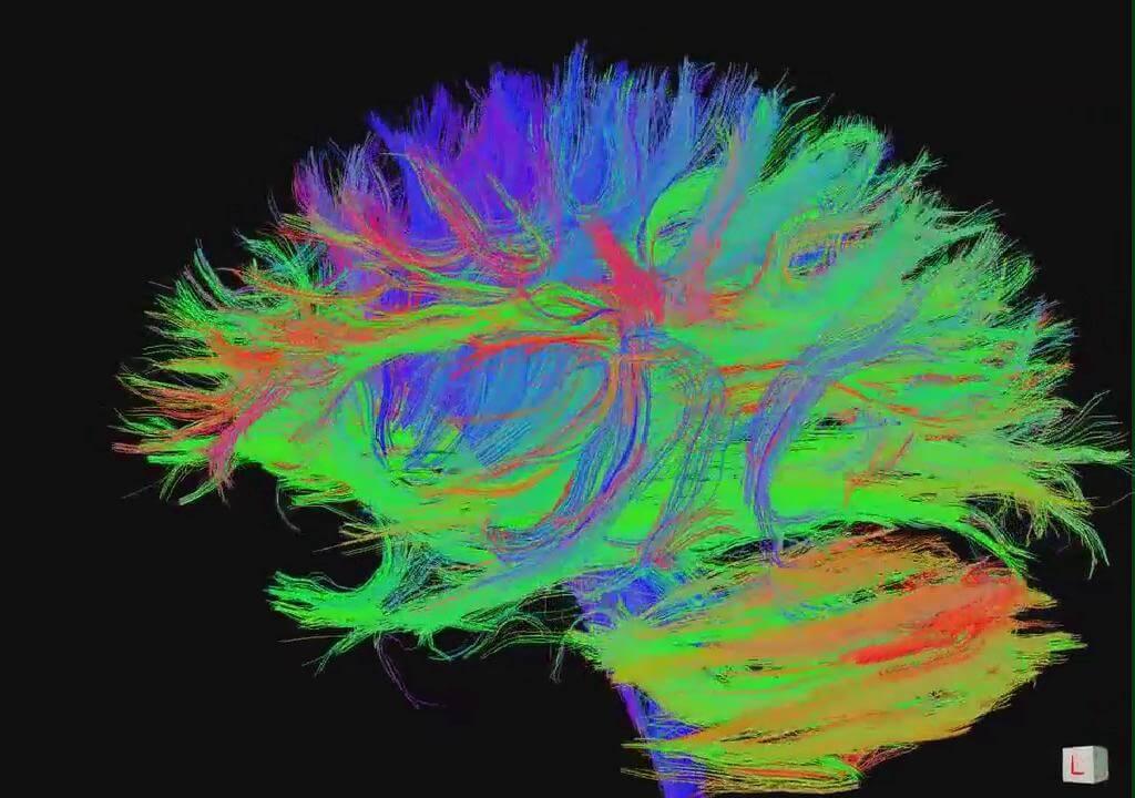 Коннектом как следующий шаг в лечении неврологических заболеваний
