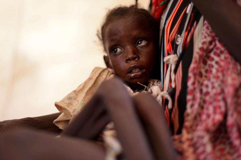 вакцинация против кори стала причиной смерти 15 детей