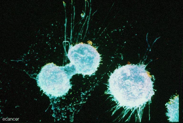 от чего зависит вероятность рака груди