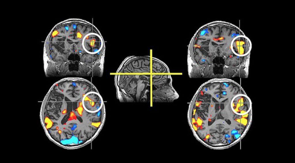 противоэпилептические препараты помогут при болезни Альцгеймера
