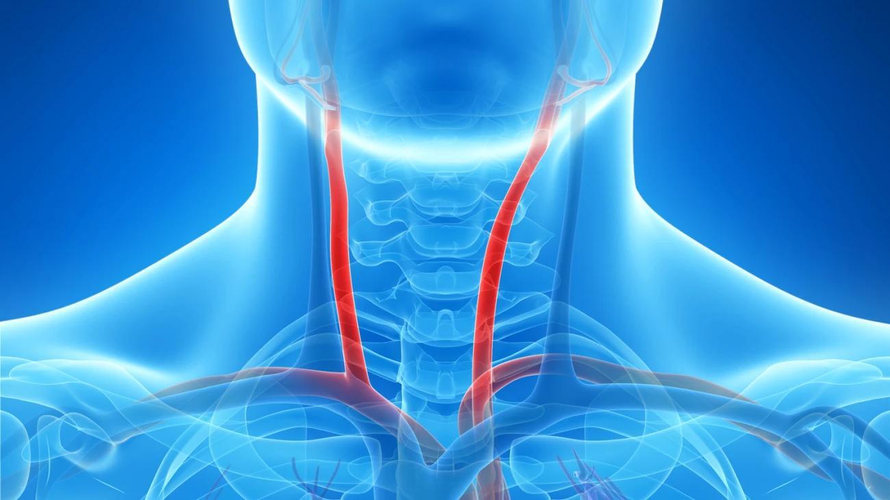 Биологический возраст можно предсказать по сонной артерии