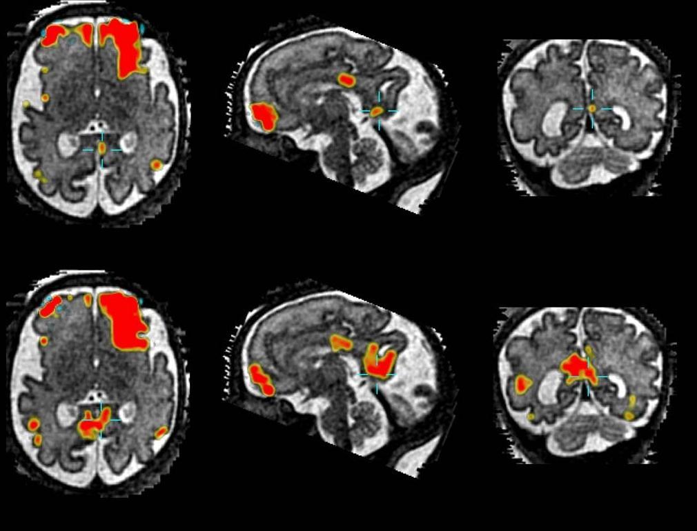 «Пассивный режим работы мозга» включается еще до рождения