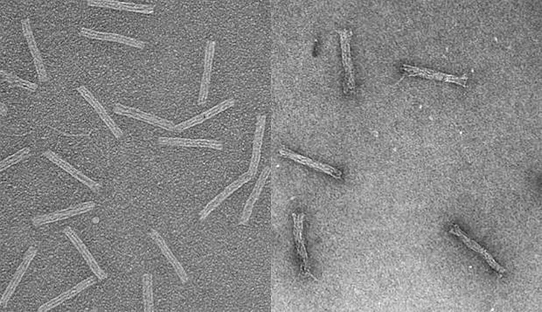 Лекарственную устойчивость рака преодолели с помощью «ДНК-оригами»