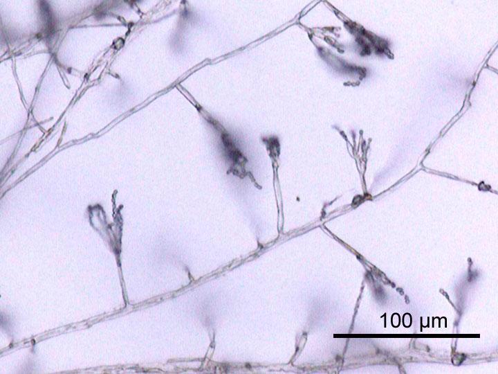 грибы помогают бактериям в трудную минуту