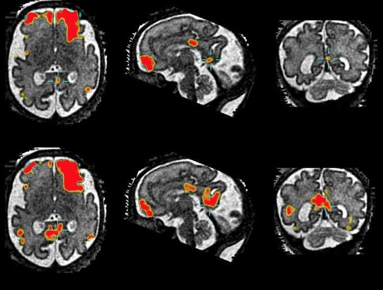 пассивный режим работы мозга