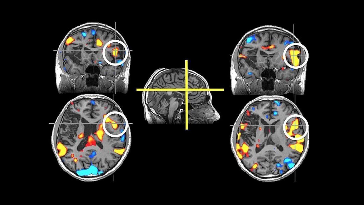 Противоэпилептические препараты помогут при болезни Альцгеймера?