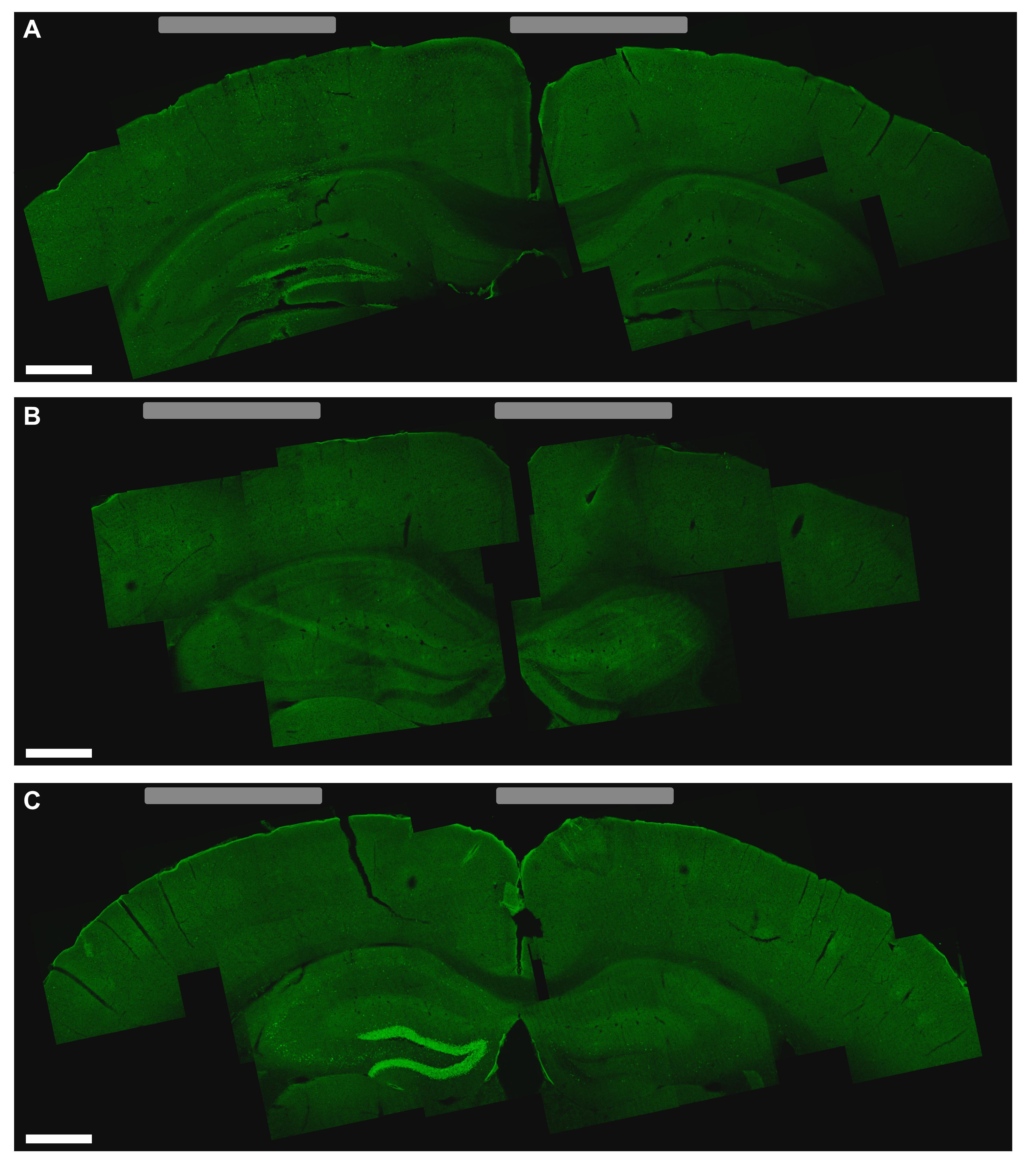 Неинвазивная, но глубокая стимуляция мозга: новый прорыв?