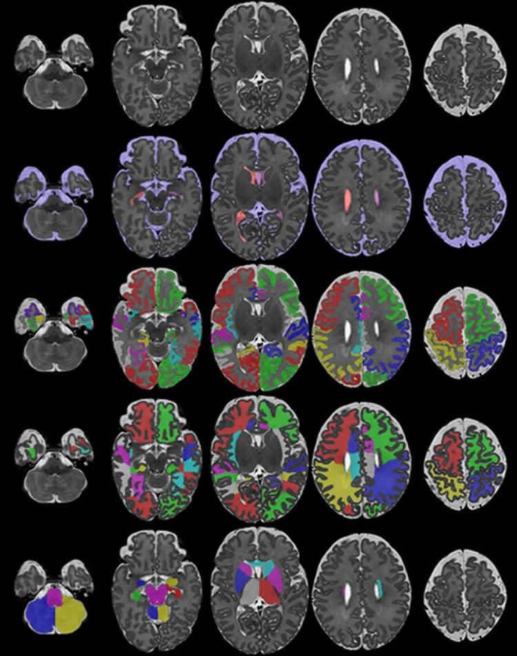 исследователи создают базу томограмм мозга новорожденных