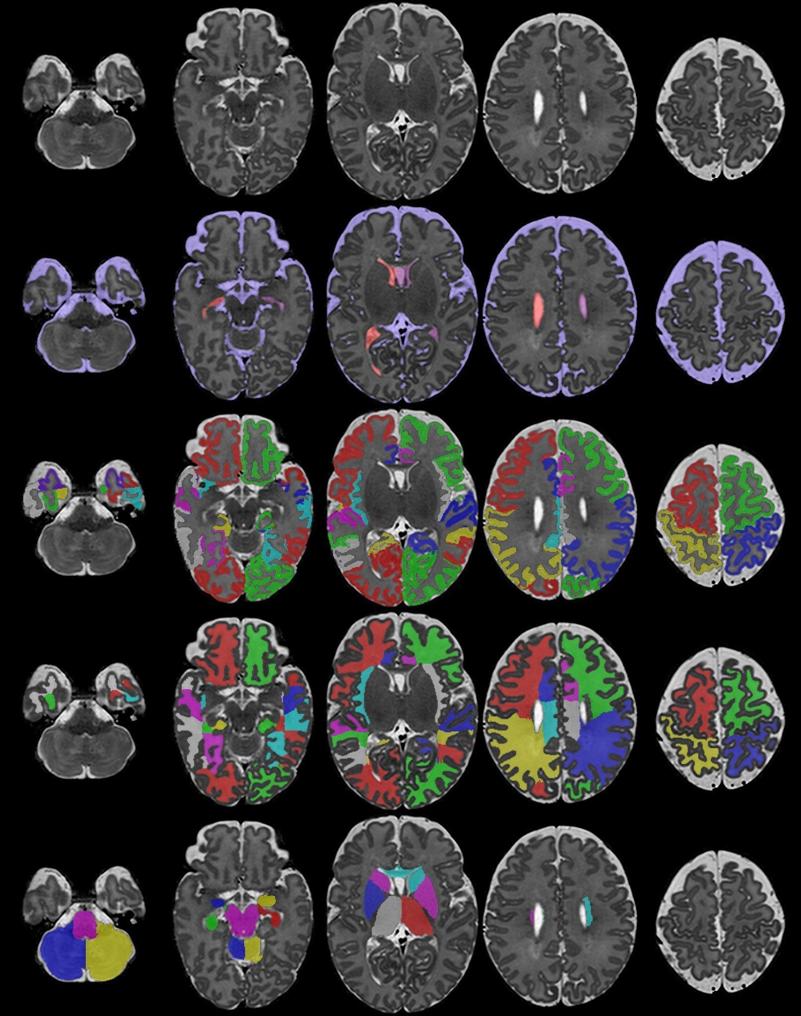 Исследователи создают базу томограмм мозга новорожденных и плода человека