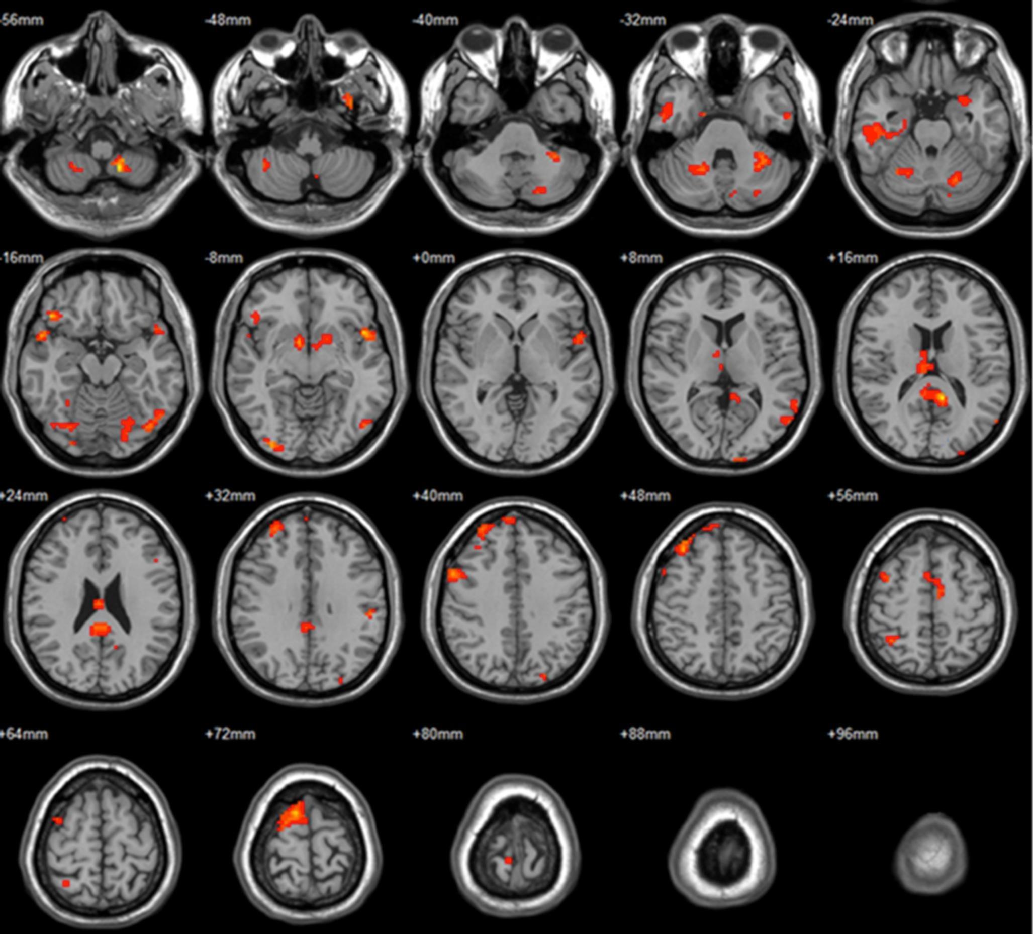 Музыкальное мастерство повысило активность зеркальных нейронов