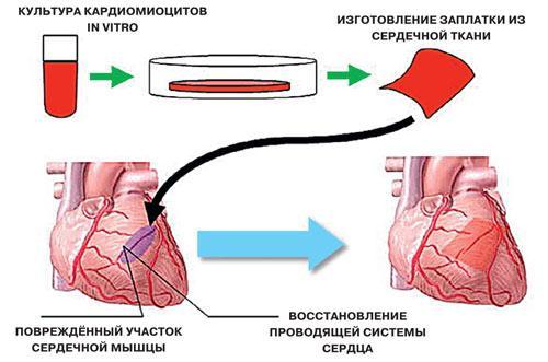 заплатки для сердца
