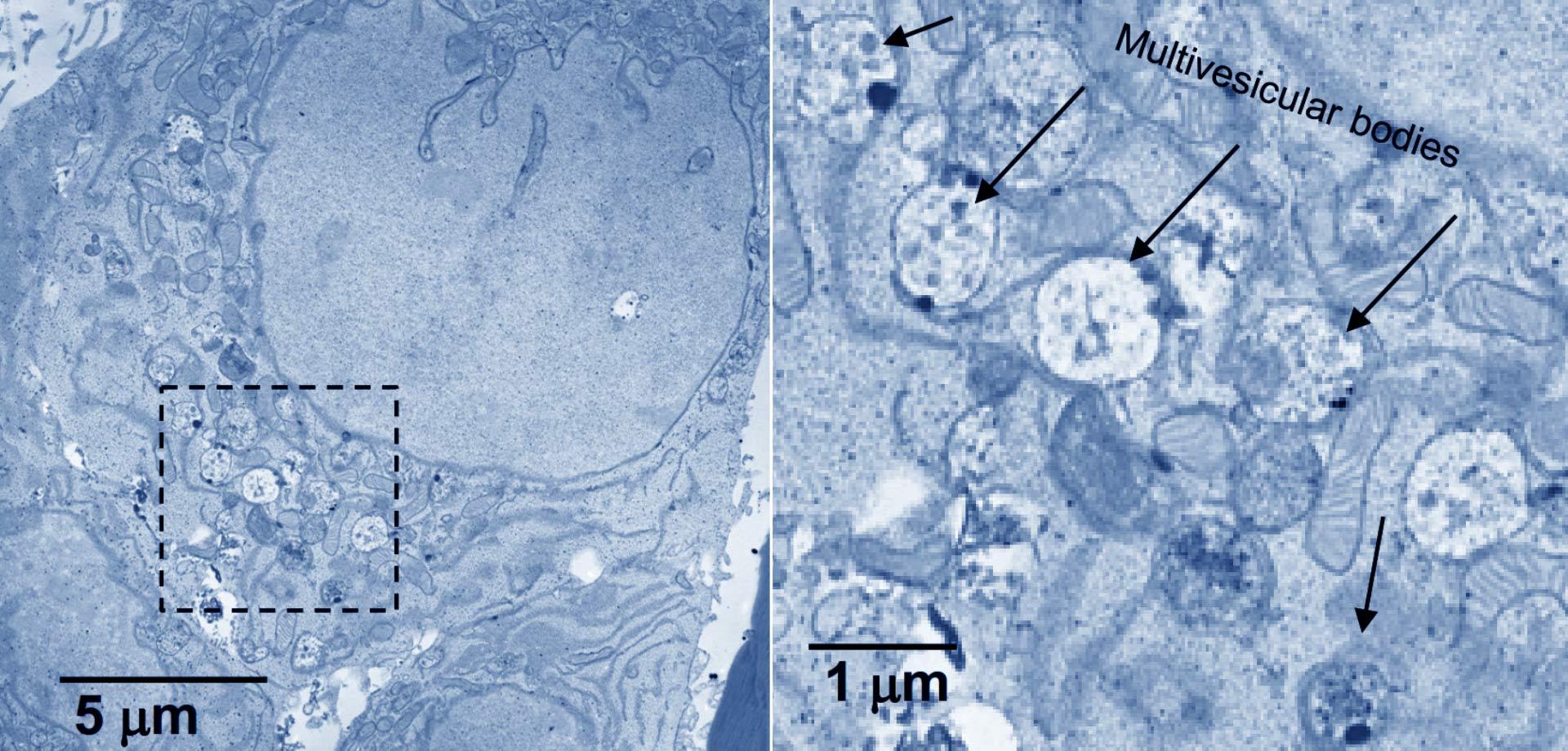 В мозге найдены управляющие старением клетки