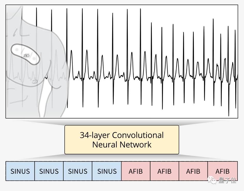 свёрточная нейросеть вытесняет врачей-кардиологов из диагностики