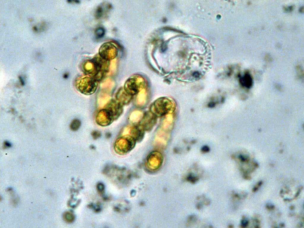 у цианобактерий обнаружили «зрение»