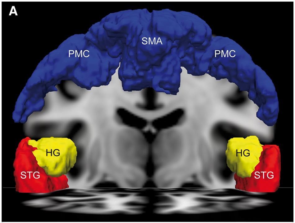 ЭЭГ и фМРТ помогут определять наличие сознания
