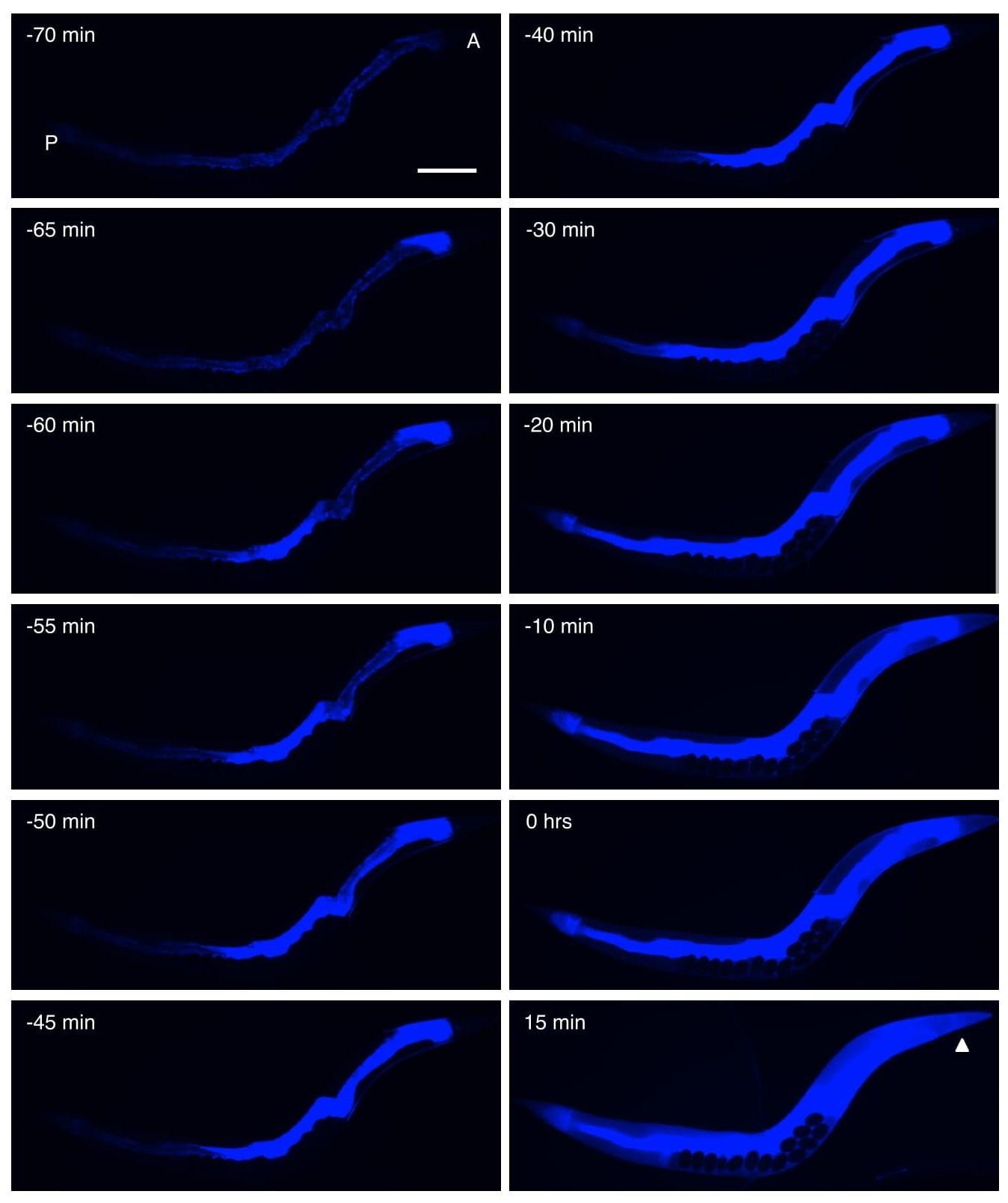 Организм умирает постепенно — клетка за клеткой
