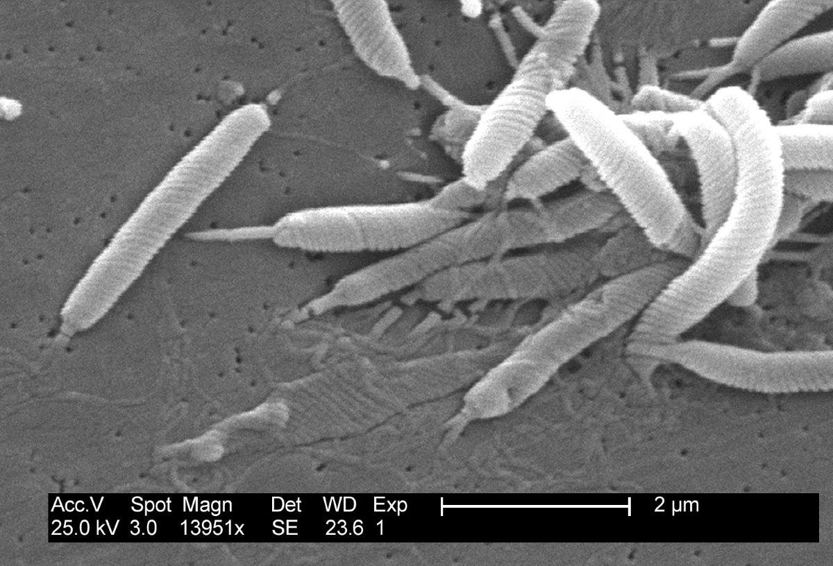 Когда хорошие бактерии становятся плохими