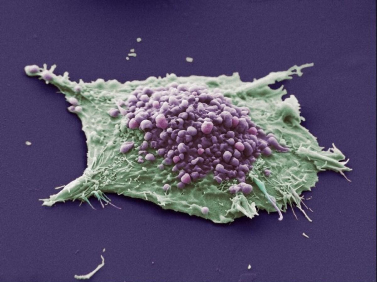 раковые клетки могут заражать здоровые