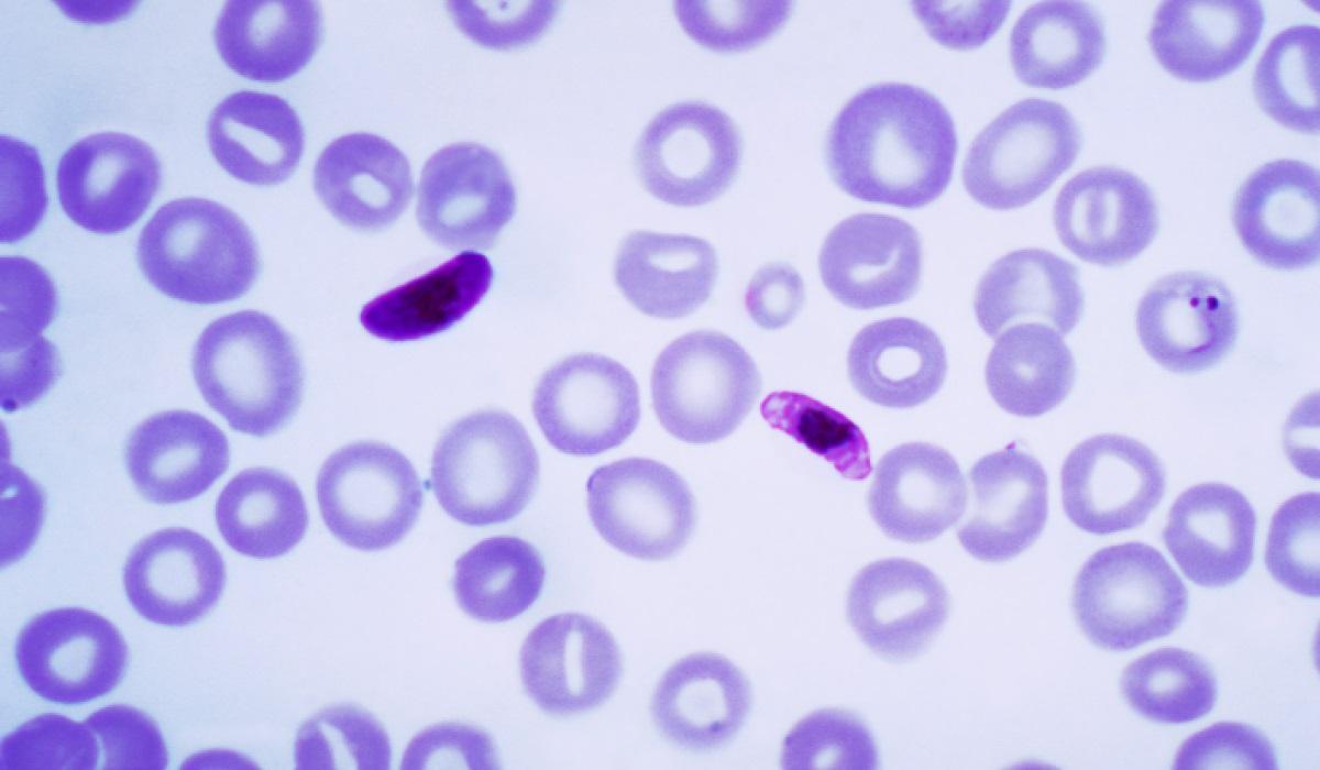 ученые заблокируют малярийным плазмодиям входы и выходы