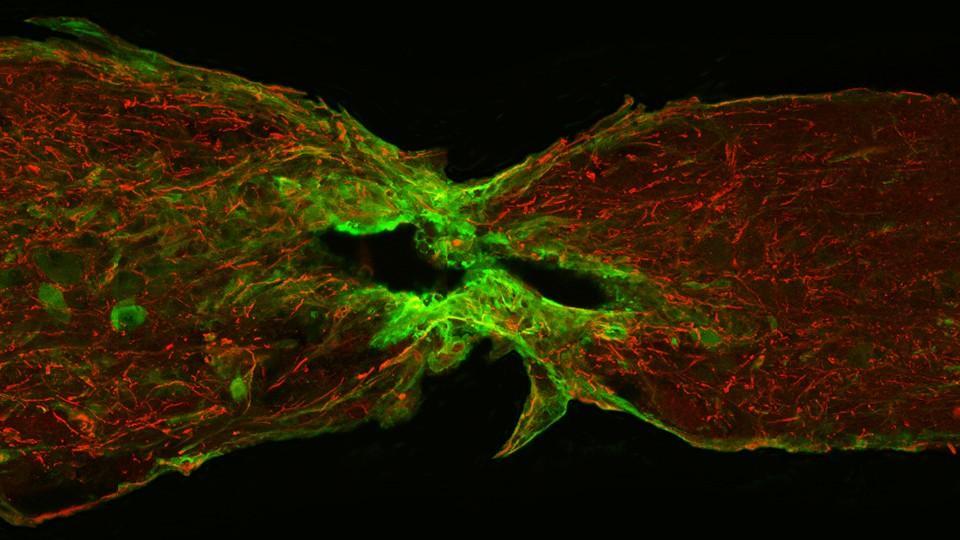 найден отвечающий за восстановление спинного мозга после травмы белок