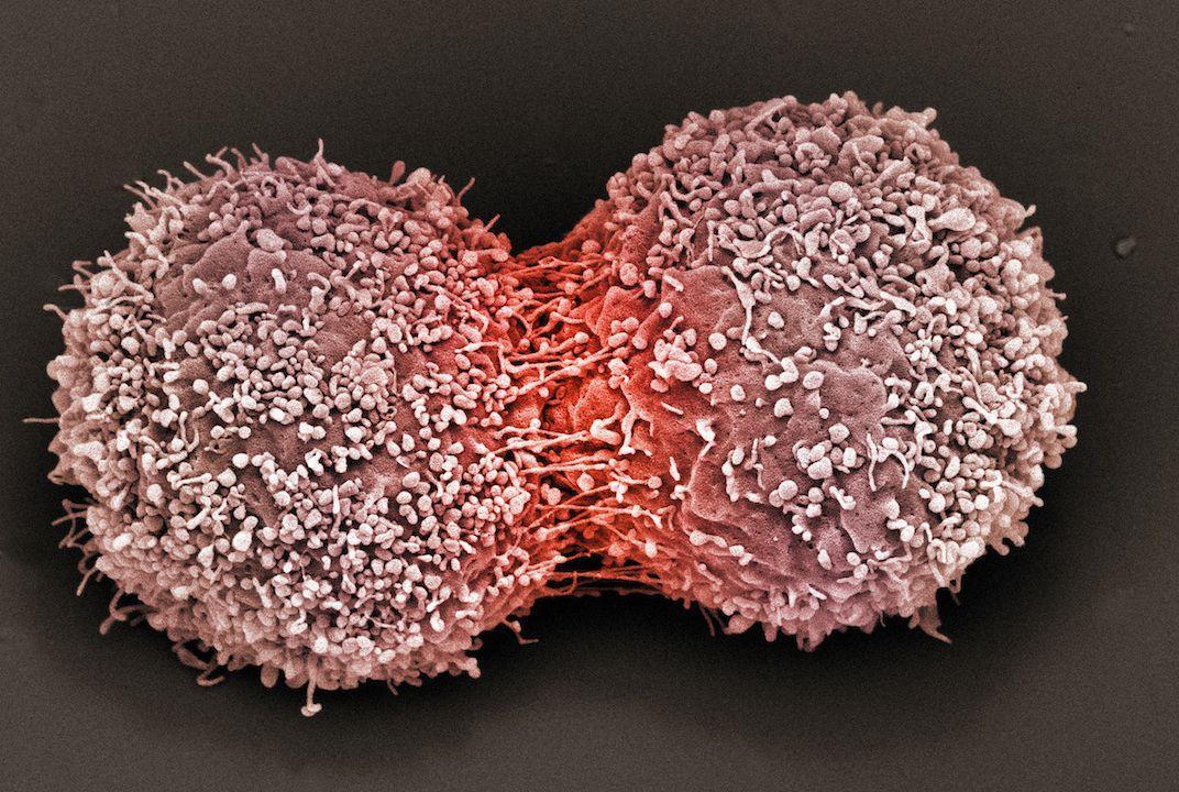 почему бактерии и опухоли отказываются от кислорода