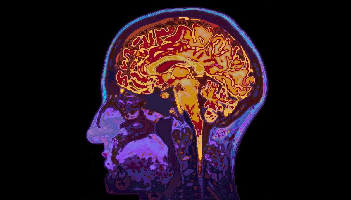 насколько оправдана шумиха на тему улучшения мозга