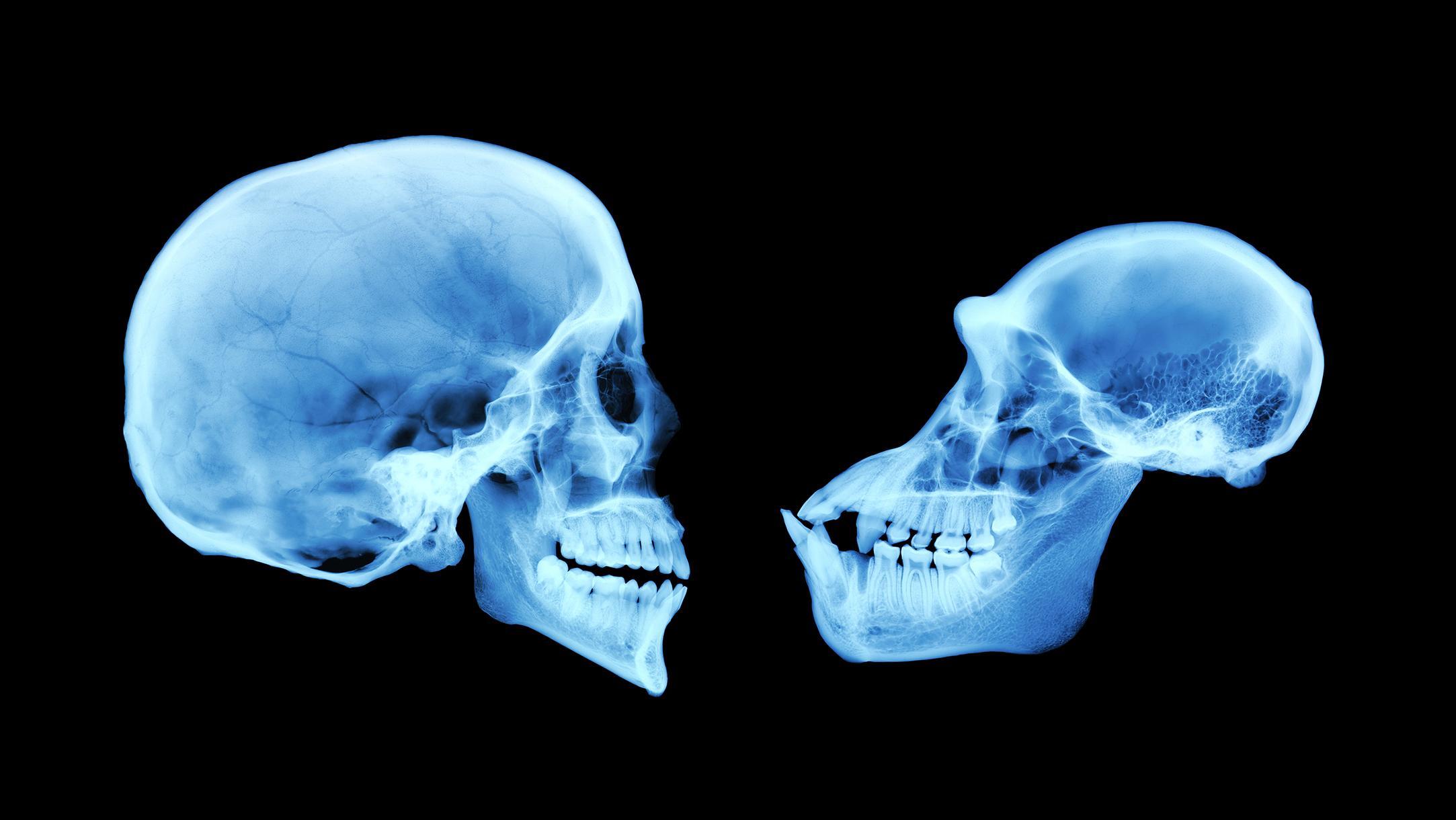 Мозг человека мог увеличиваться за счёт мышц