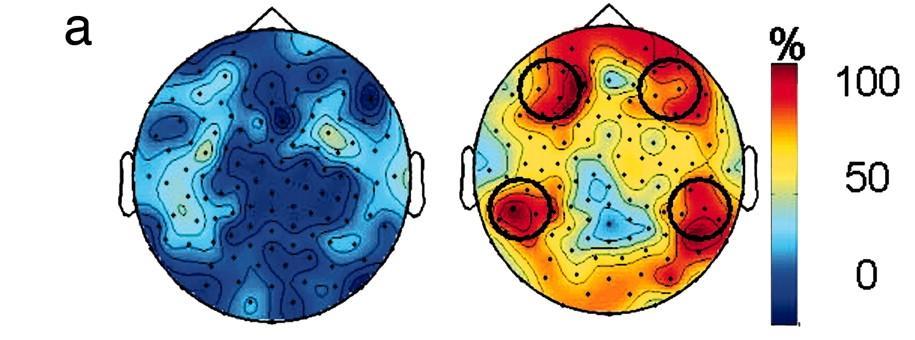 Активность мозга во время медитации (справа) и в спокойном состоянии (слева)