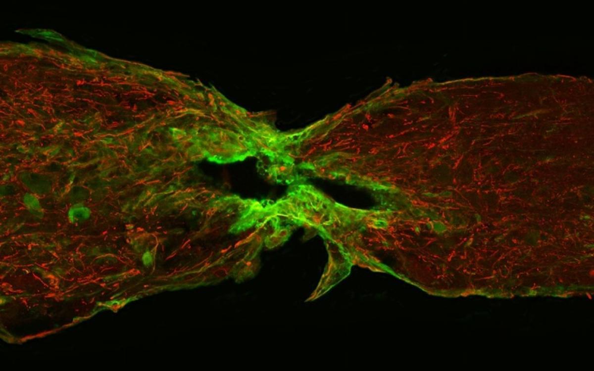 Ученые нашли белок, запускающий восстановление поврежденного спинного мозга