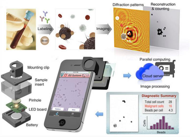 смартфоны заменят микроскоп в поиске раковых клеток