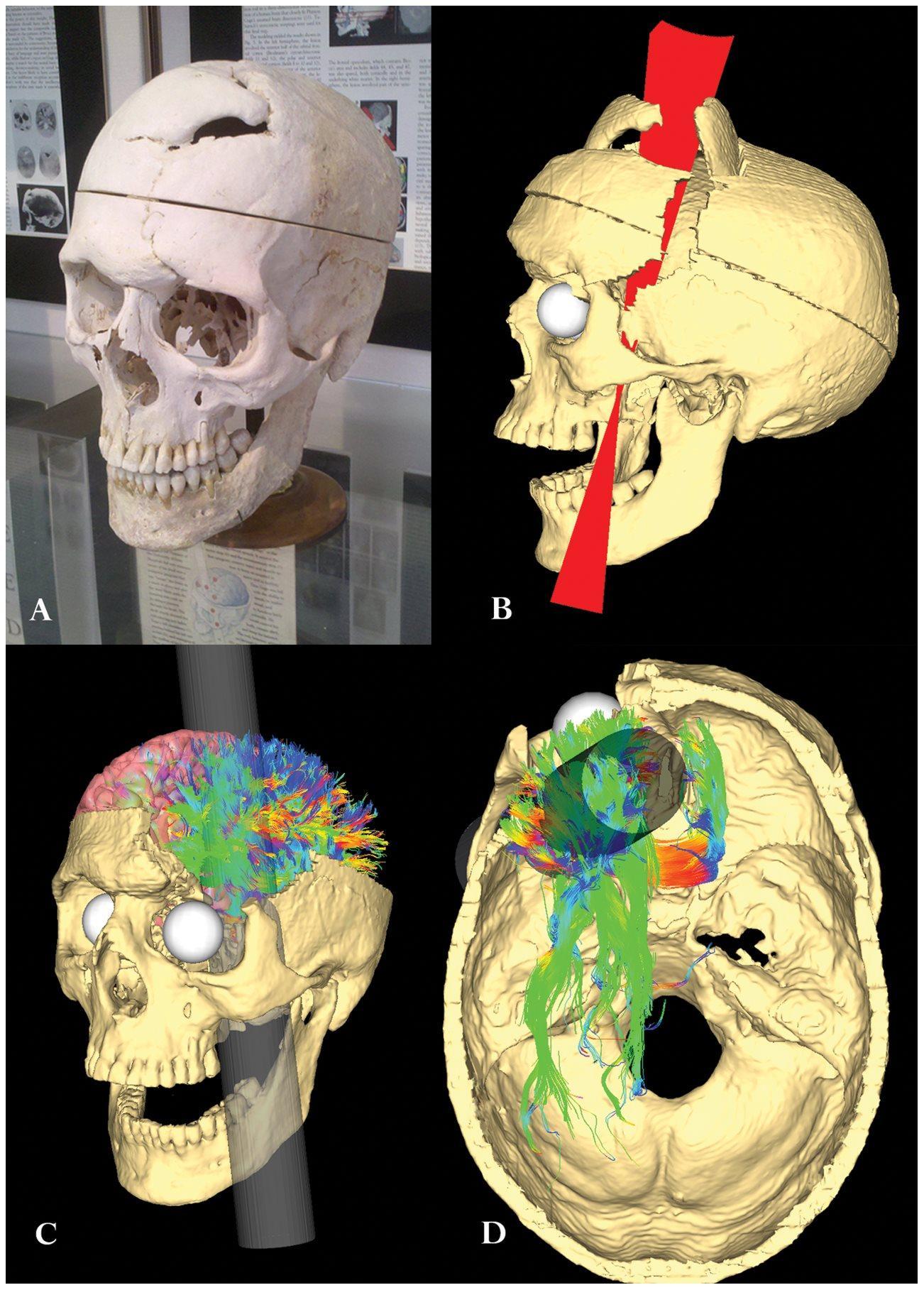 Интересный пациент: ломик в мозге