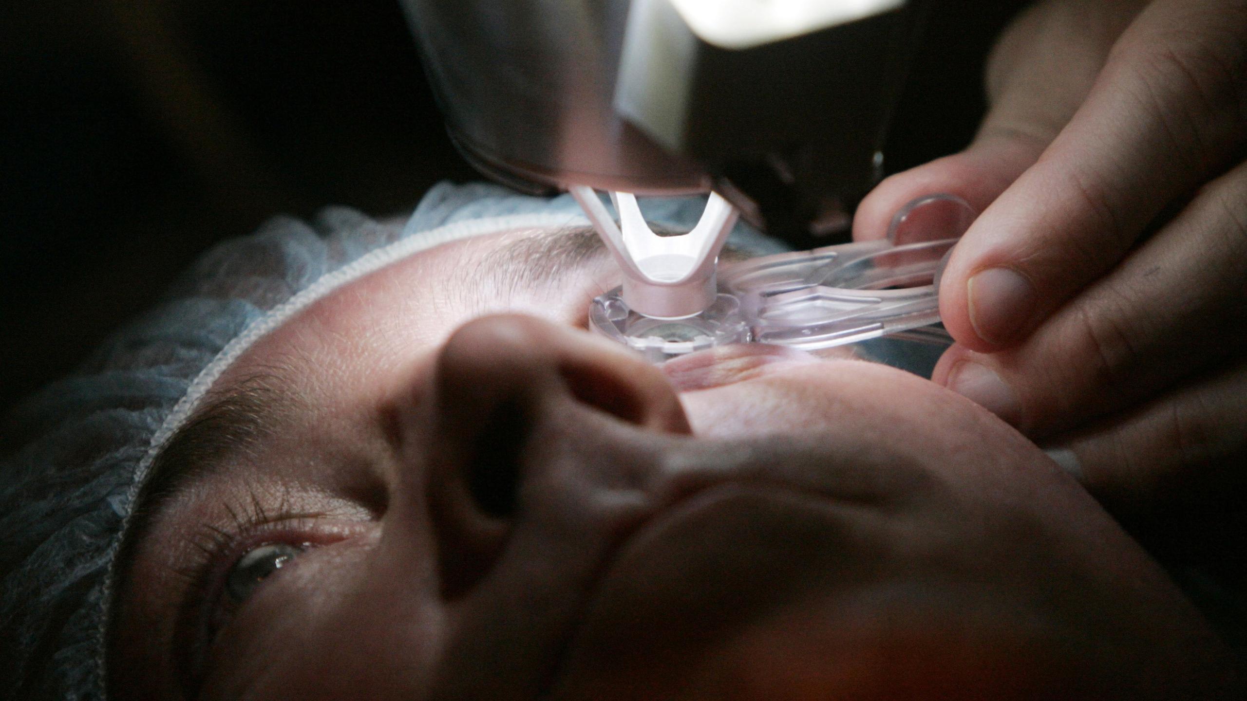 Лазерная коррекция зрения: чудо, страх и запах паленых волос