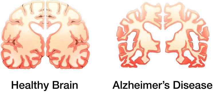 компьютер научили предсказывать болезнь Альцгеймера