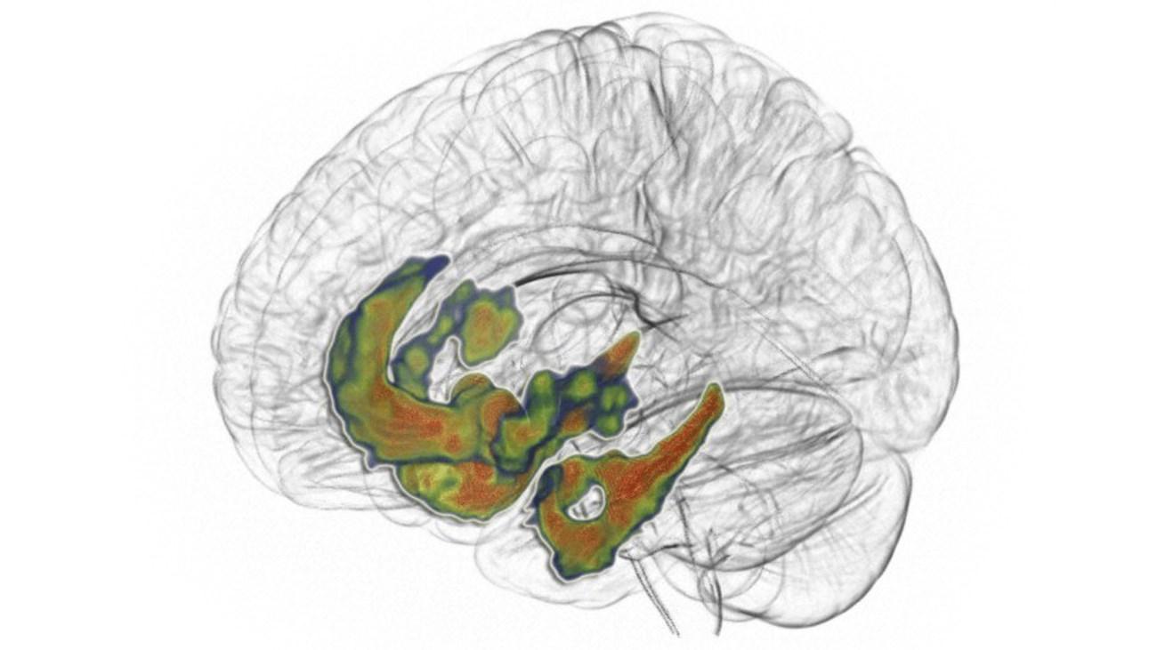 как дофамин помогает думать