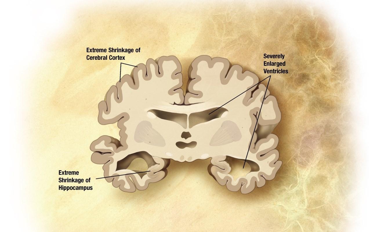 Вирусный вектор против болезни Альцгеймера