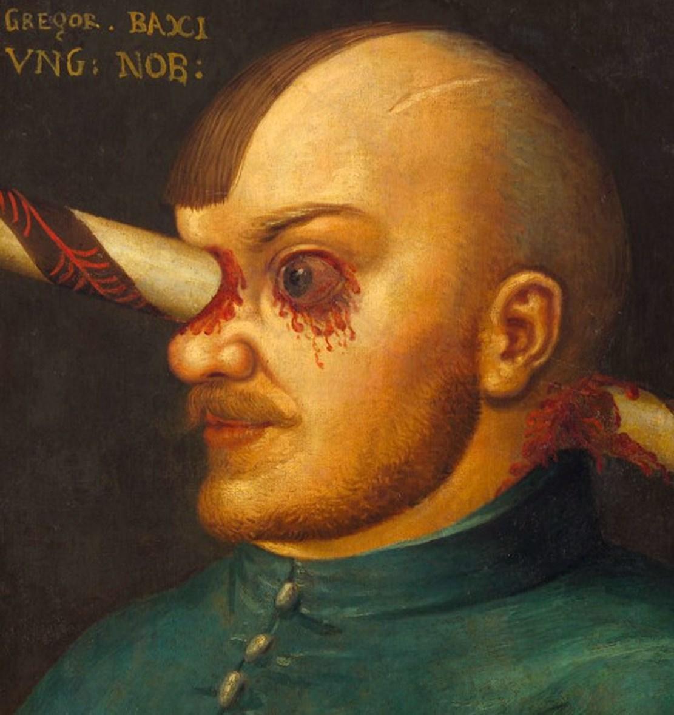 Интересный пациент: рыцарь с пробитым мозгом
