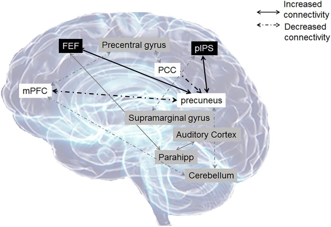 ушной звон не даёт мозгу ни расслабиться, ни сосредоточиться