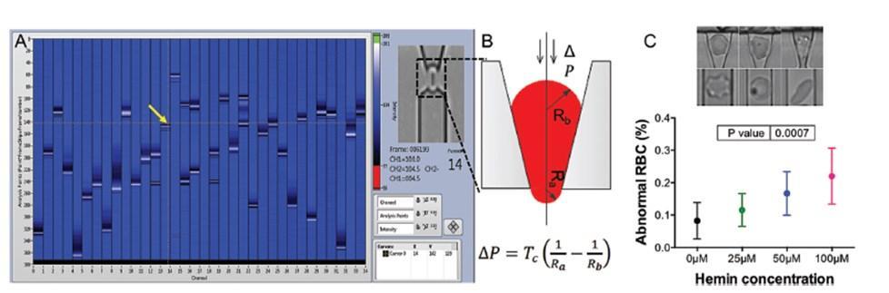 новый прибор для анализа малярии способен выявлять тяжесть заболевания