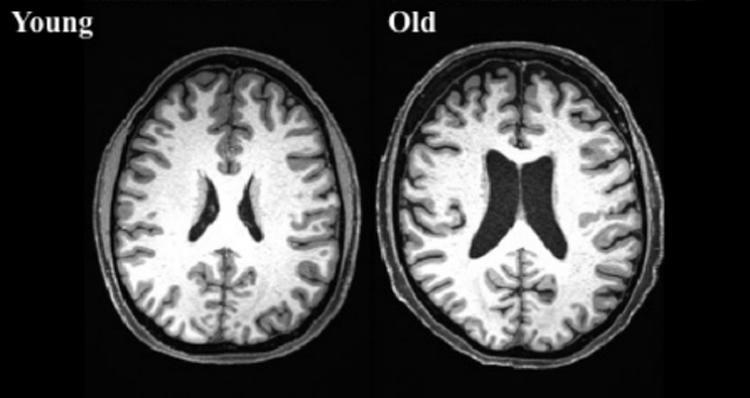 Возрастной коннектом: учёные выяснят, как изменяется мозг с возрастом