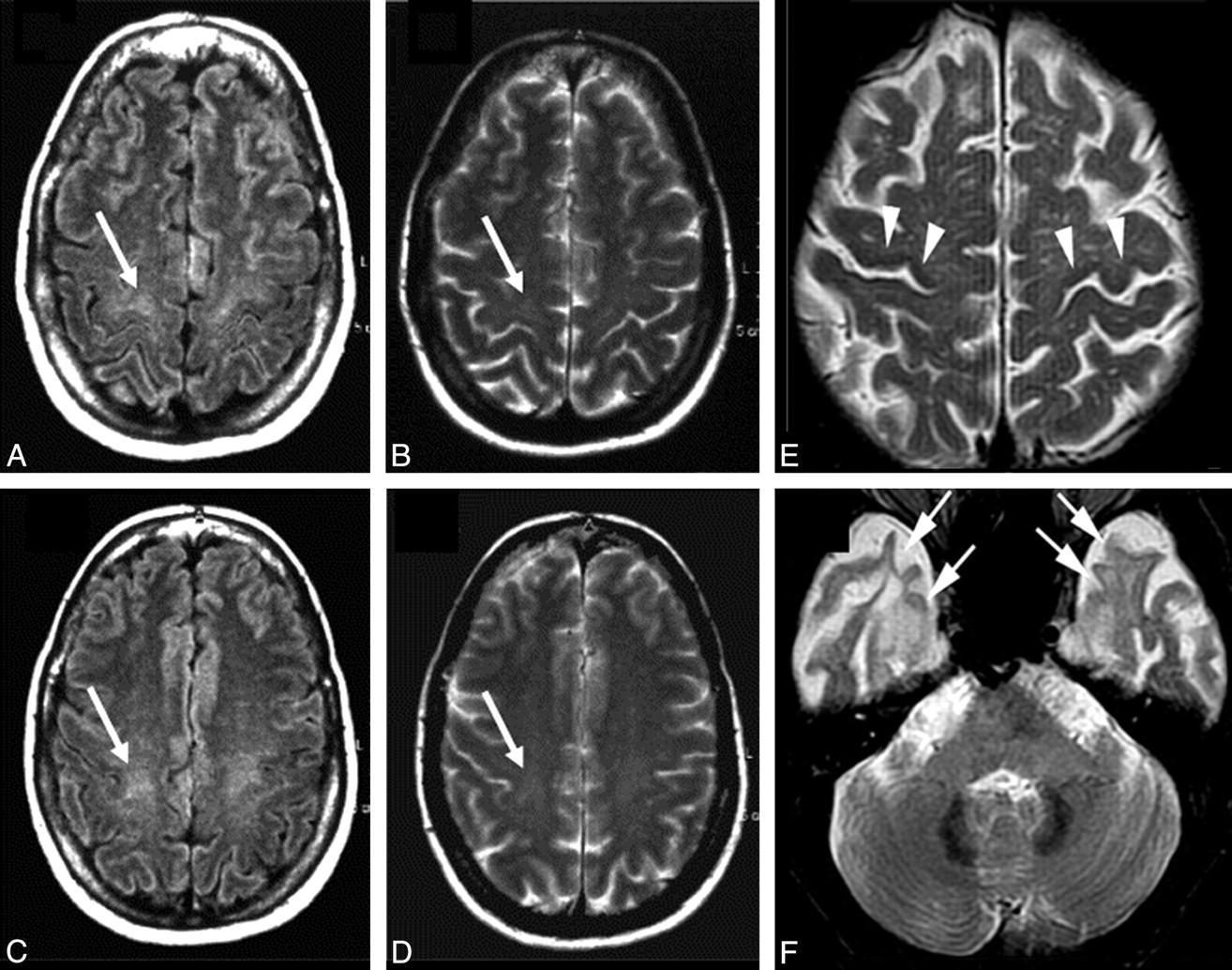 Боковой амиотрофический склероз вылечили на уровне клеток