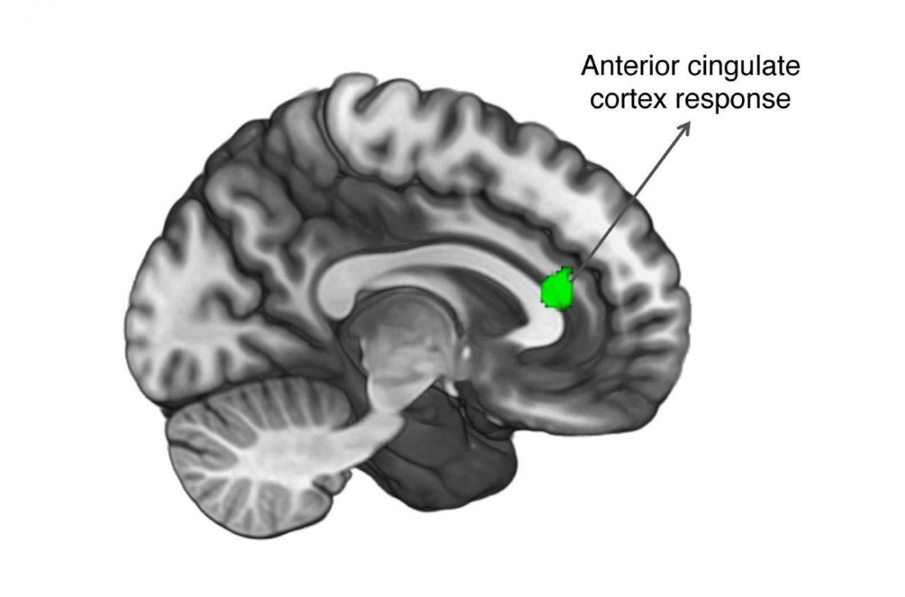 Связь между болью и аутизмом