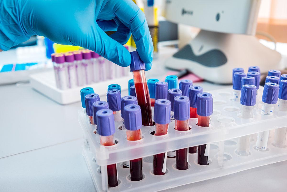 Риск возникновения сердечных болезней зависит от группы крови и загрязнения воздуха