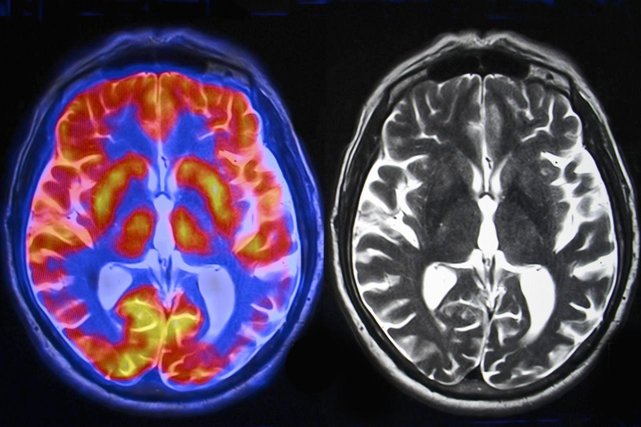 Более крупные при рождении дети имеют больший головной мозг в юности